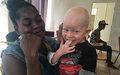 L'albinisme, un sujet fondamental à approfondir